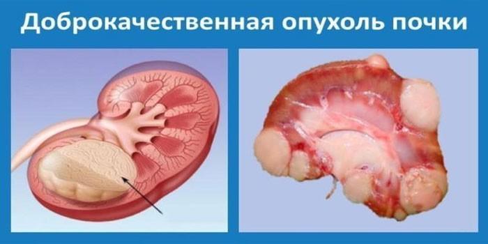 Доброкачественная опухоль