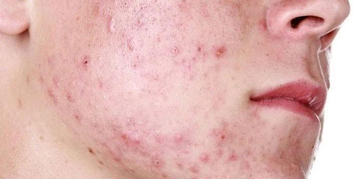 Пораженная золотистым стафилококком кожа лица