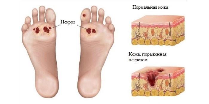 Некроз тканей стопы