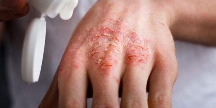 Проявления экземы на коже