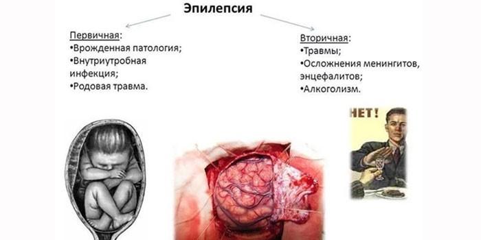 Первичная и вторичная эпилепсия