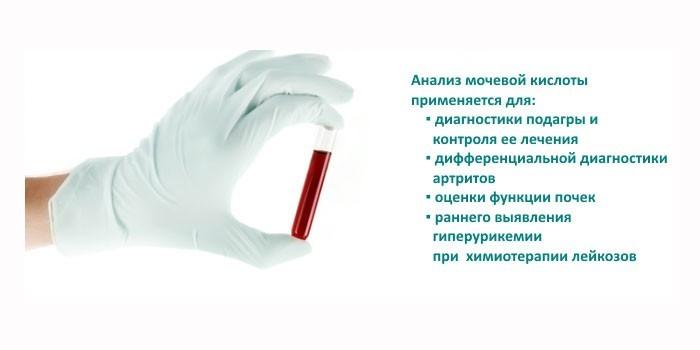 Основания для проведения анализа на мочевую кислоту