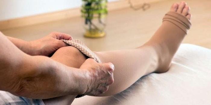 Женщина надевает компрессионные чулки
