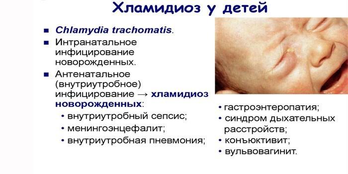 Хламидиоз новорожденных