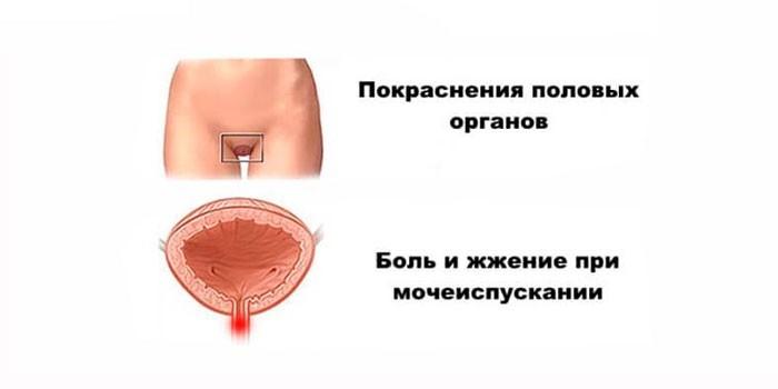 Симптоматика у женщин