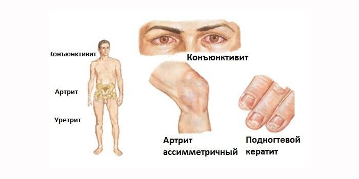 Проявления хламидиоза