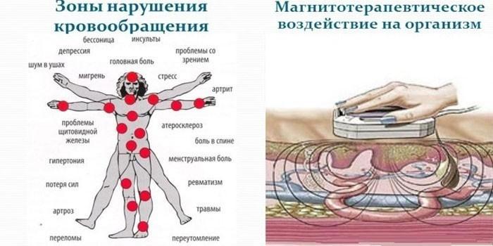 Магнитотерапевтическое воздействие на организм