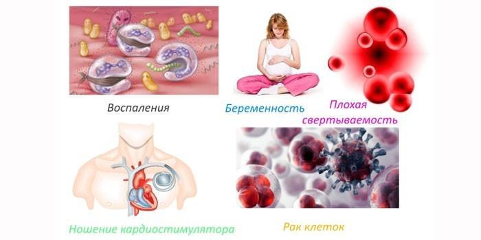 Противопоказания магнитотерапии
