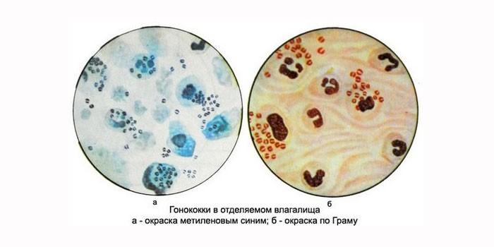 Фото гонококков под микроскопом
