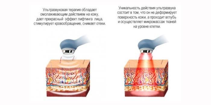 Польза ультразвука для кожи