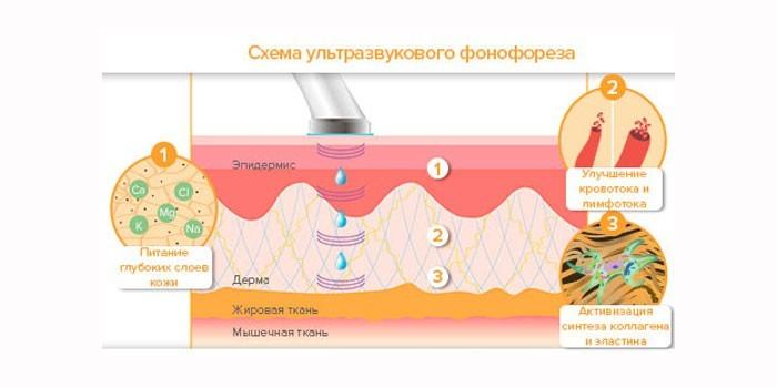Схема ультразвукового фонофореза