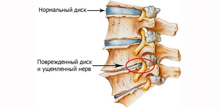 Поврежденный диск и ущемленный нерв