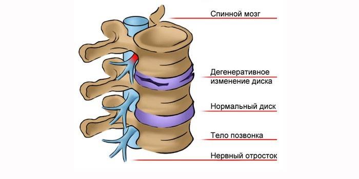 Дорсопатия шейного отдела позвоночника