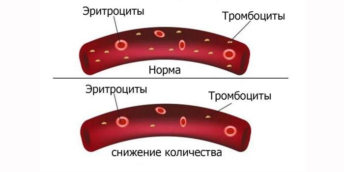 Формы тромбоцитопении
