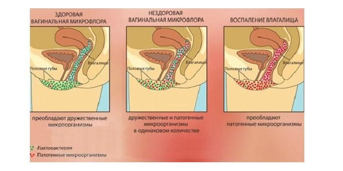 Микрофлора влагалища при инфицировании и воспалении