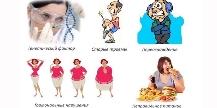 Провоцирующие болезнь факторы