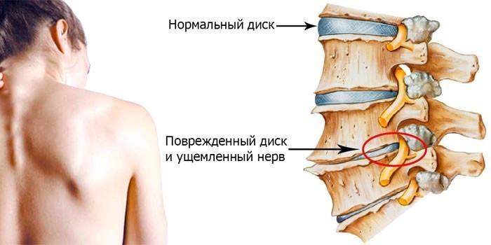 Поврежденный диск и ущемленный нерв шейного отдела