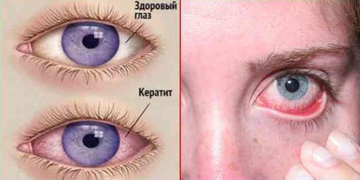 Здоровый глаз и пораженный кератитом