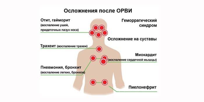 Осложнения после орви