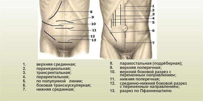 Операционные доступы при лапаротомии