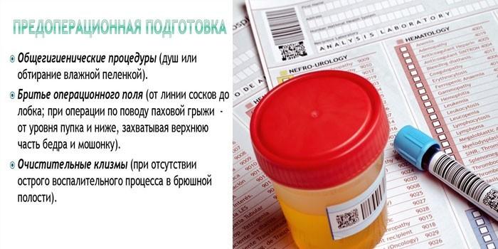 Правила предоперационной подготовки пациента