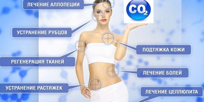 Эффект карбокситерапии