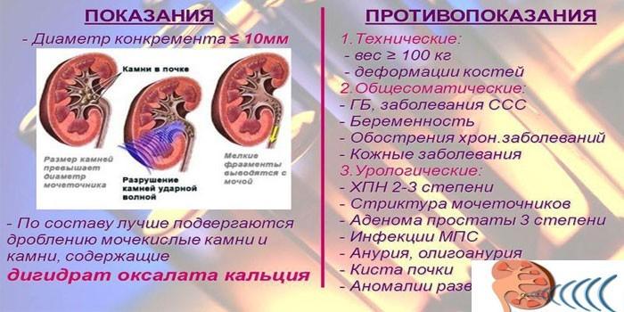 Показания и противопоказания к литотрипсии