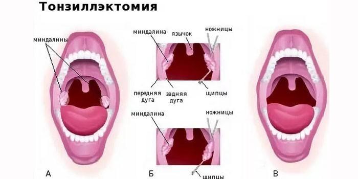 Горло до и после тонзилэктомии