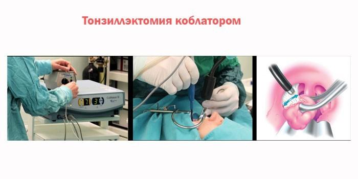Тонзиллэктомия коблатором