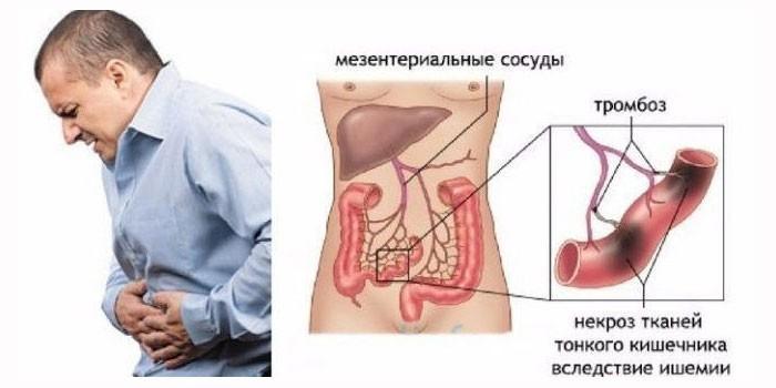 Ишемии кишечника