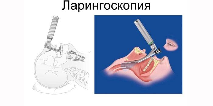 Техника проведения прямой ларингоскопии