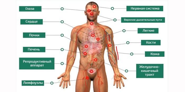 Органы страдающие от саркоидоза
