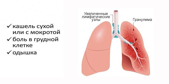 Симптомы поражения легких