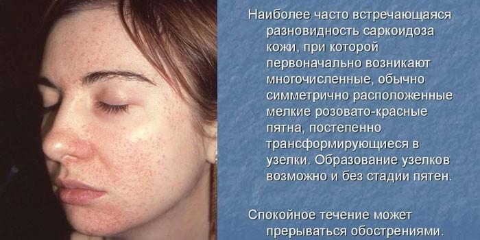 Кожные изменения при болезни