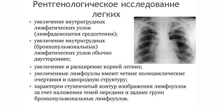 Что показывает рентгенологическое исследование