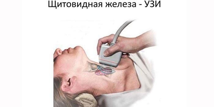 Проведение УЗИ щитовидной железы