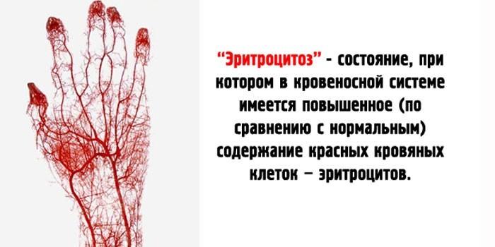 Эритроцитоз крови