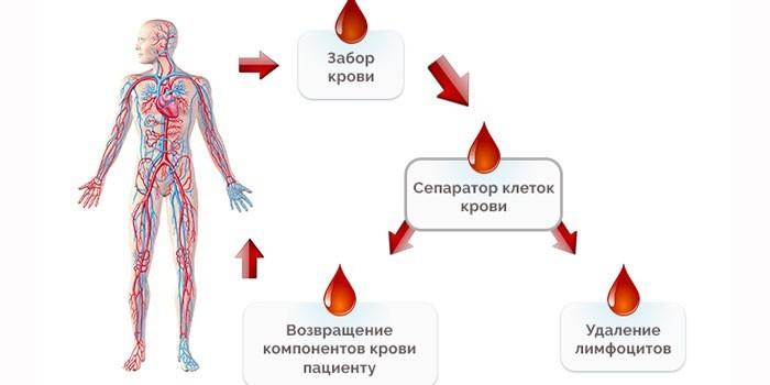Процедура эритроцитафереза