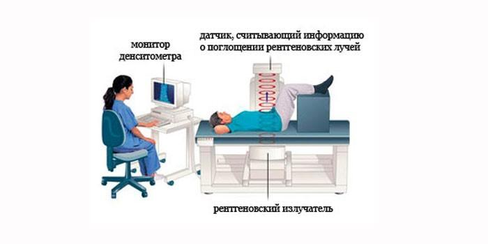 Рентгеновская остеоденситометрия