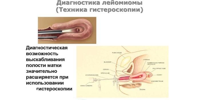 Техника проведения гистероскопии
