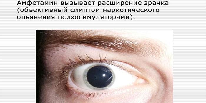 Реакция зрачков на прием амфетамина