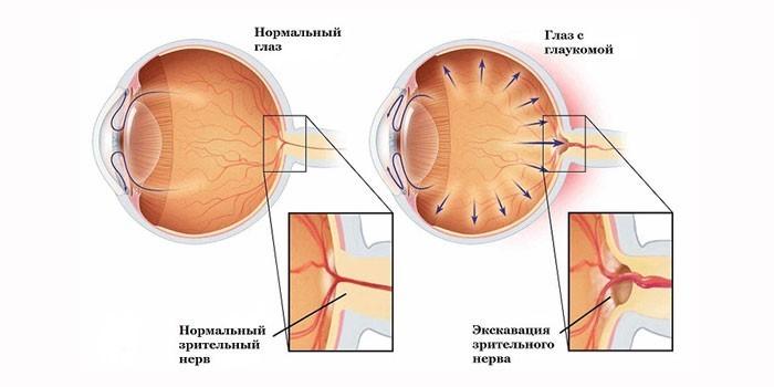 Глаукома глаз