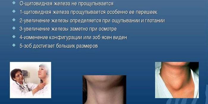 Степени увеличения щитовидки