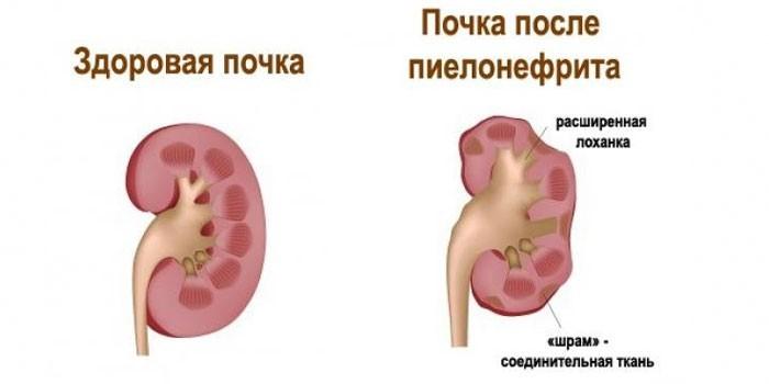 Здоровая почка и после пиелонефрита