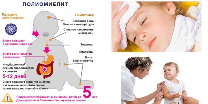 Полиомиелит у детей
