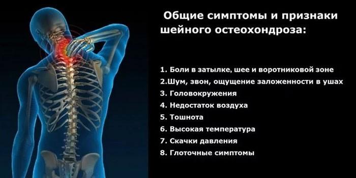 Симптомы и признаки шейного остеохондроза
