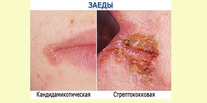 Кандидамикотическая и стрептококковая заеда