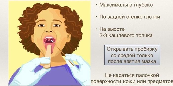 Техника проведения мазка из горла