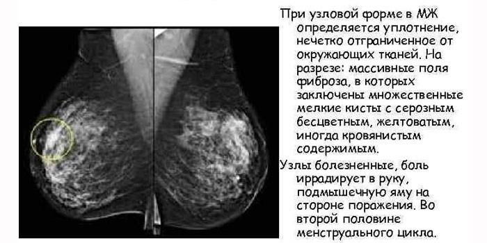 Проявления узловой формы на маммографии