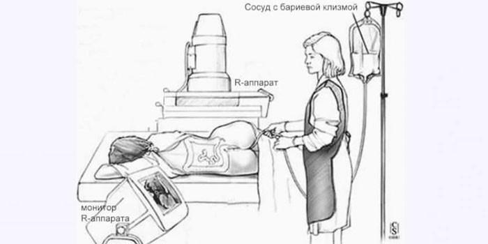 Схема проведения ирригоскопии